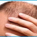 Alopecia areata, addio calvizie con il primo farmaco in commercio